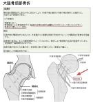 大腿骨頚部骨折図解