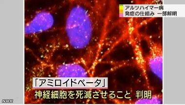 アルツハイマー病|iPS細胞3