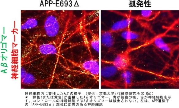 アルツハイマー病|iPS細胞7
