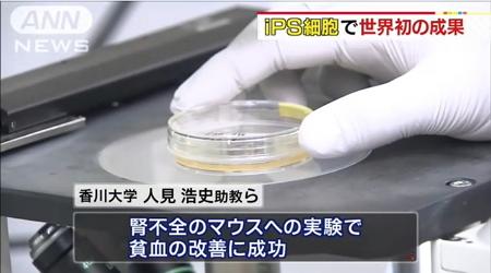 世界初「赤血球増やす細胞」生成成功4