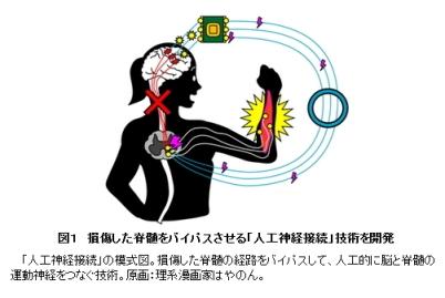 人工神経接続(図1)