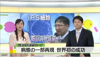 筋ジストロフィー患者からiPS細胞1