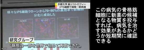 筋ジストロフィー患者からiPS細胞4