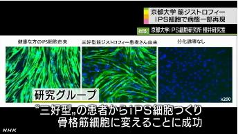 筋ジストロフィー患者からiPS細胞5