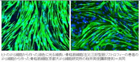 筋ジストロフィー患者からiPS細胞7