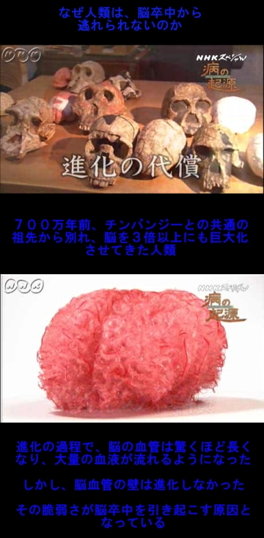 NHKスペシャル_脳卒中・早すぎた進化の代償1