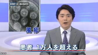風疹患者 ことし1万人超える1