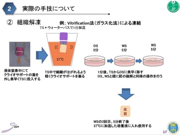 卵巣組織凍結03