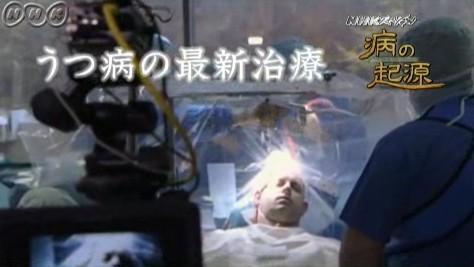 うつ病⇒防衛本能がもたらす宿命(NHKスペシャル・病の起源3)5